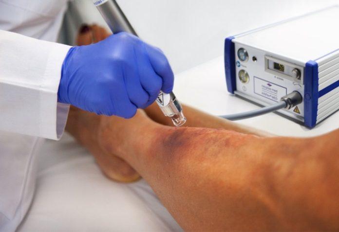 image 1 157 696x477 - Wundbehandlung mit Kaltplasma: neoplas med erreicht Meilenstein für künftige Kassenleistung