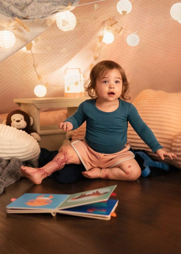 """Meningitis bewegt Leonie 696x975 - """"Leonie konnte ja nicht sprechen und sagen, was mit ihr los ist."""" - Interview mit Leonies Mutter"""